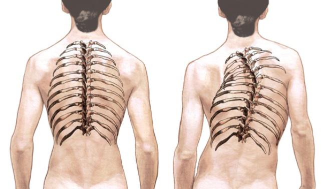 pilates y dolor de espalda