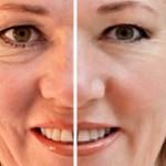 efectos de la edad en la piel